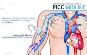 GESTIONE INFERMIERISTICA PICC E MIDLINE